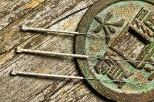 Chinese acupuncture needles